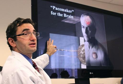 Dr. Mark Liker Deep Brain Stimulation